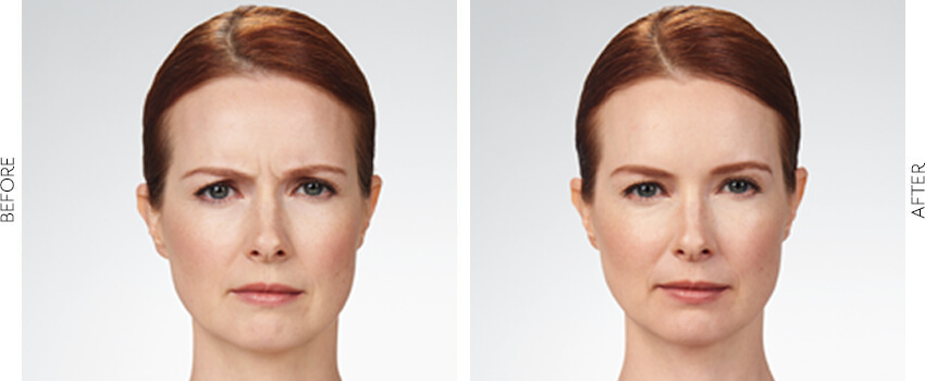 botox before and after image