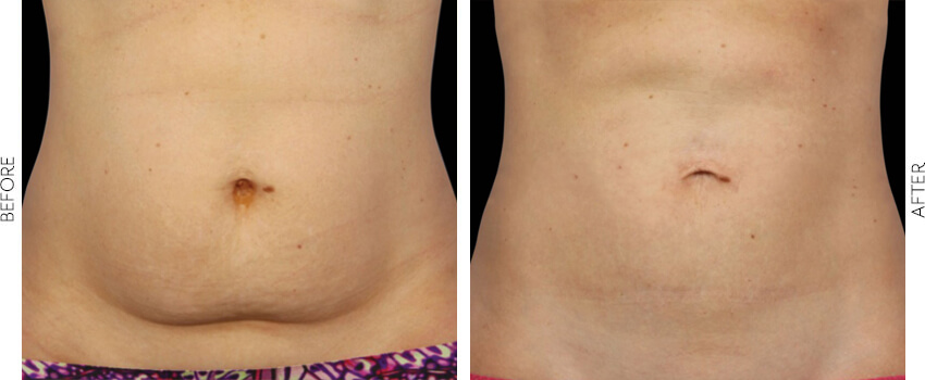 belle-marin-aesthetic-medicine-coolsculpting-ba-mill-valley-1