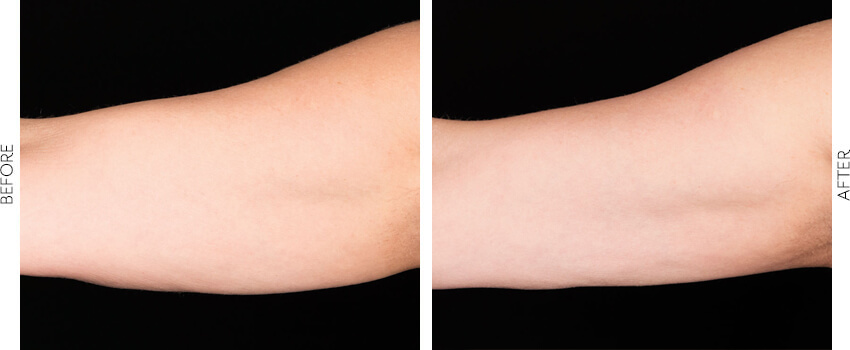 coolsculpting before and after image