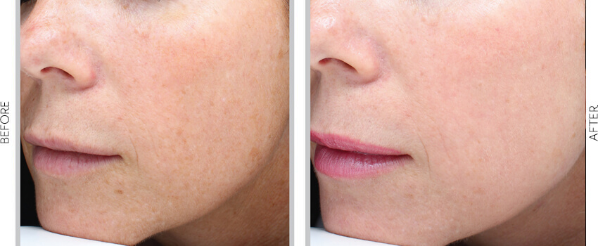 Halo Laser treatment before and after image