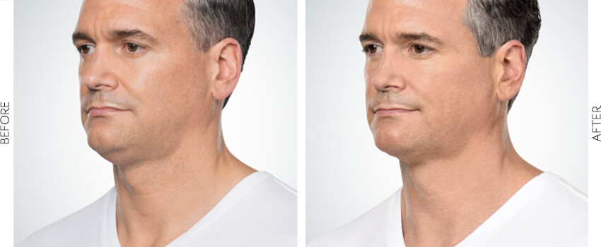 belle-marin-aesthetic-medicine-kybella-ba-mill-valley-2