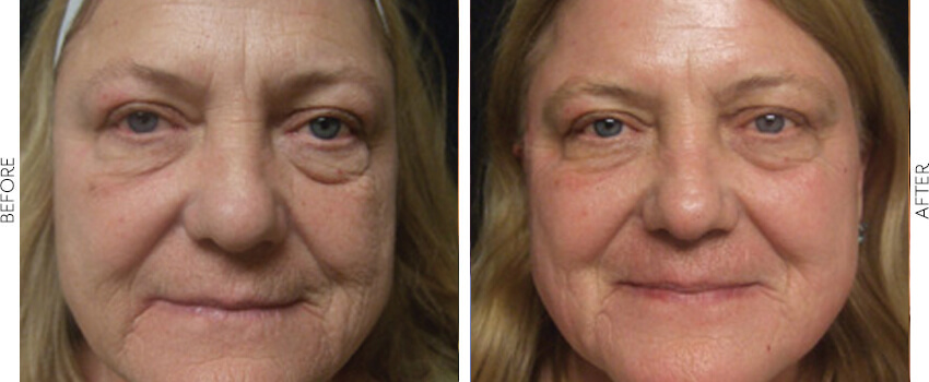 profractional before and after image