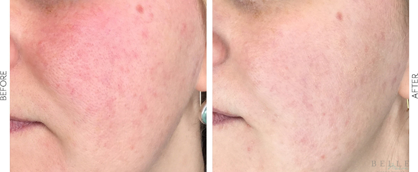 BBL Photofacial before and after image