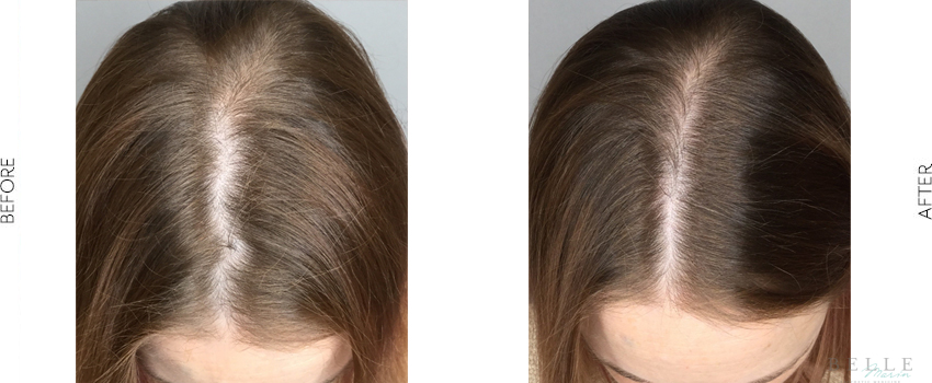 PRP hair restoration before and after image
