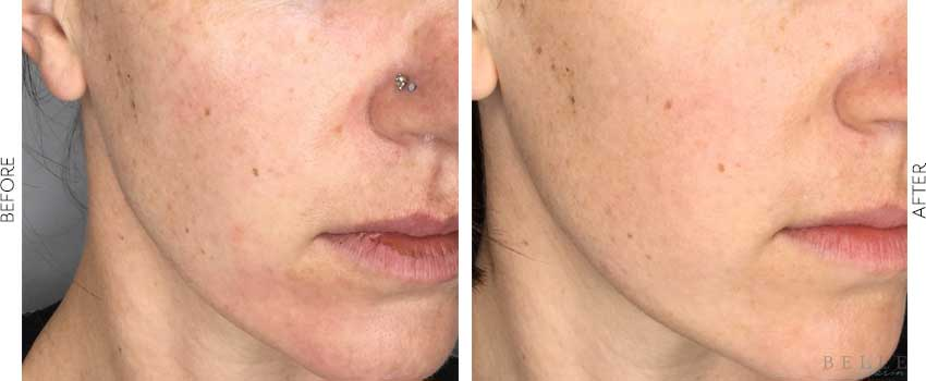 belle-marin-aesthetic-medicine-before-and-after-vivace-mill-valley-ca-1-1-min