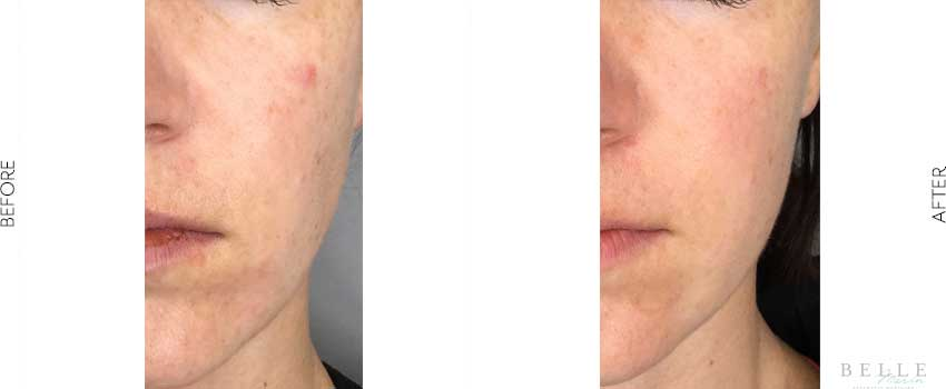 belle-marin-aesthetic-medicine-before-and-after-vivace-mill-valley-ca-2-1-min