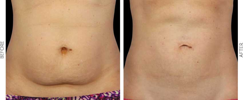 belle-marin-aesthetic-medicine-coolsculpting-ba-mill-valley-1-1-min