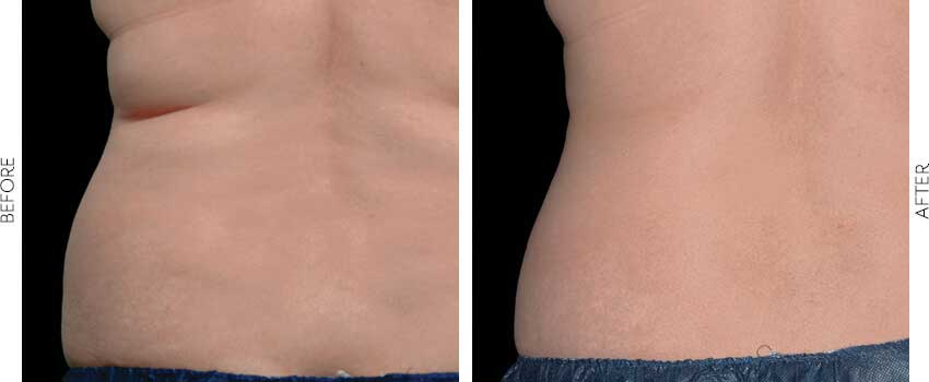 belle-marin-aesthetic-medicine-coolsculpting-ba-mill-valley-2-1-min