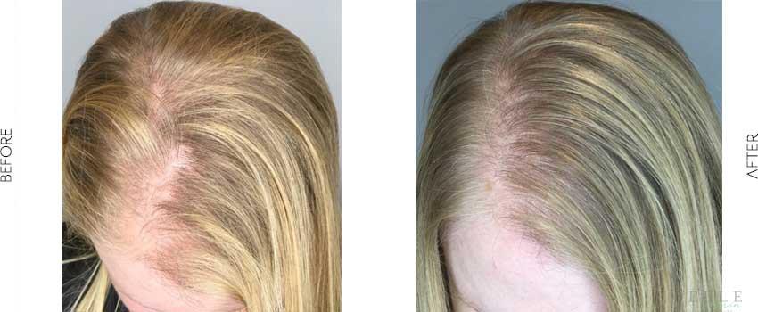 belle-marin-aesthetic-medicine-hair-restoration-2-1-min