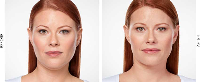 belle-marin-aesthetic-medicine-kybella-ba-mill-valley-1-1-min