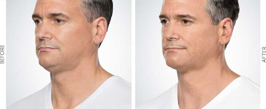 belle-marin-aesthetic-medicine-kybella-ba-mill-valley-2-1-min