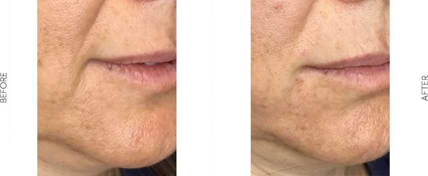 Threadlift before and after image