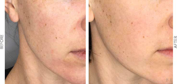 belle-marin-aesthetic-medicine-before-and-after-vivace-mill-valley-ca-1-3-min